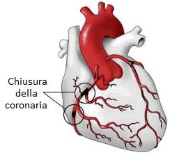 Coronarie del cuore l infarto del miocardio amec for Vasi coronarici
